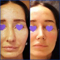 Perfect Nose Job In Newcastle At Thornfield Medical Group