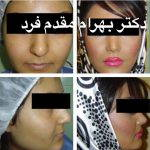 Persian (Iranian) Rhinoplasty Is A Very Common Type Of Middle Eastern Cosmetic Nose Surgery