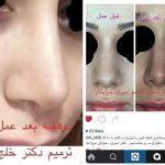Persian (Iranian) Rhinoplasty Patients (3)
