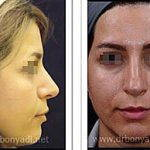 Persian Nose Job Before And After (2)