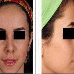 Persian Rhinoplasty Before After (10)
