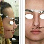 Persian Rhinoplasty Before After (11)