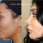 Persian Rhinoplasty Before After (2)