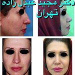 Persian Rhinoplasty Before After (4)