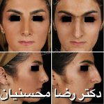 Persian Rhinoplasty Before After (5)