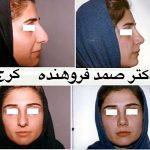 Persian Rhinoplasty Before After (7)