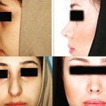 Persian Rhinoplasty Before After (8)