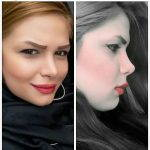 Persian Rhinoplasty Before After (9)