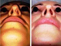 Photos Of Rhinoplasty Before And After In India