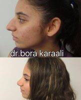 Plastic Surgery On Nose Iran Women Before After Pictures