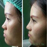 Rhinoplasty Bridge Augmentation Picture Before And After