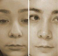 Rhinoplasty Free Before And After Photo