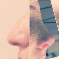 Rhinoplasty Long Nose Tijuana Patient