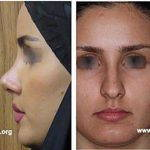 Rhinoplasty Persian Nose (2)