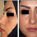 Rhinoplasty Persian Nose (3)