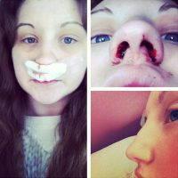 Rhinoplasty Septoplasty And Turbinectomy Nose