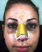 Rhinoplasty To Make Nose Smaller In Maryland Results