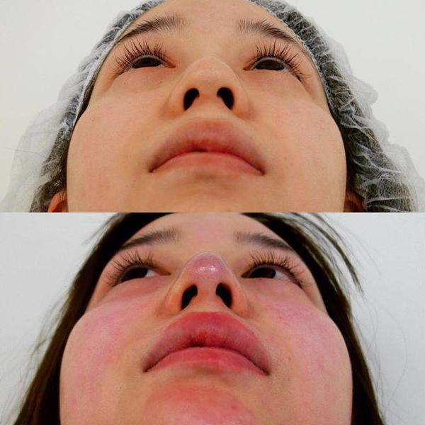south korean nose job photo 187 rhinoplasty cost pics