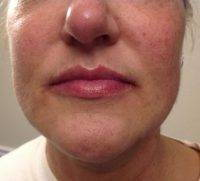 Nose Job To Fix Bulbous Nose » Rhinoplasty: Cost, Pics ...