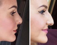The Only Way To Remove A Nasal Hump Is With Nose Job Surgery