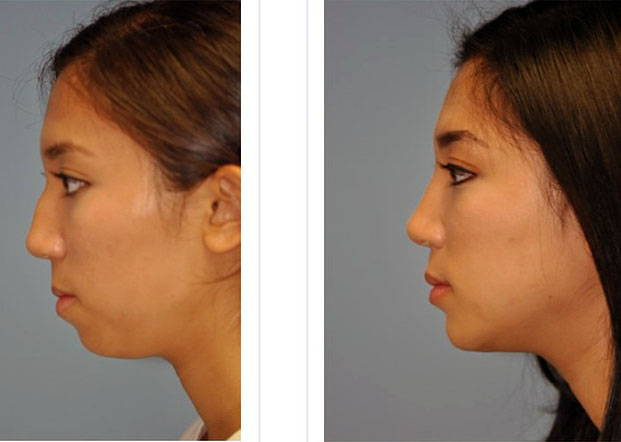 Mexicans asian nose job before after the gym