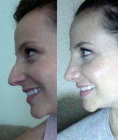 The Perfect Nose For Your Face At New Orleans Center For Aesthetics And Plastic Surgery