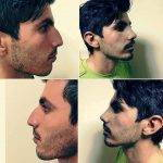 Wally Zollman's Male Rhinoplasty In Indianapolis Photos Before And After
