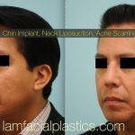What Is Korean Rhinoplasty For Man