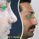 nasal bump removal before after (2)
