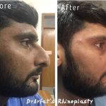 nasal hump removal before after for man