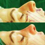 nasal hump removal preop and postop (4)