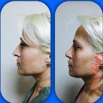 patient satisfaction is very high form nose hump removal