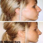 photos of nose hump removal