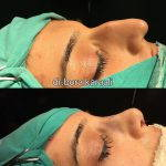removal of nasal hump before and after (1)