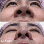 About One In Five Rhinoplasties Requires Nostril Surgery