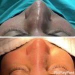 Asymmetric Nostril Surgery