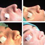 Asymmetrical Nostril Surgery