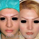 Before And After Nose Bump Correction (10)