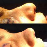 Before And After Nose Bump Correction (11)