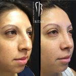 Before And After Nose Bump Correction (2)