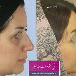 Before And After Nose Bump Correction (3)