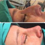 Before And After Nose Bump Surgery (4)