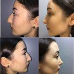 Big Nose Job Before And After Pictures (2)