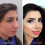 Big Nose Plastic Surgery Before And After