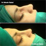 Can Deviated Septum Cause Sleep Problems Images