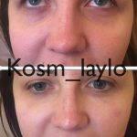 Can Rhinoplasty Fix A Big Nose Photo (5)