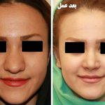 Can Rhinoplasty Make A Big Nose Small Photo
