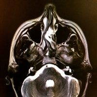 Deviated Septum Can Bend To One Side Or Another
