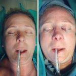 Deviated Septum Surgery Takes Anywhere From 30 To 90 Minutes To Complete, Depending On The Complexity Of The Condition