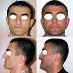 Does Fixing A Deviated Septum Change The Nose Shape Phot